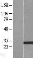 NBL1-11375 - GSTO2 Lysate