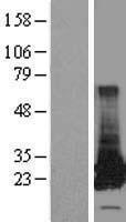 NBL1-11378 - GSTT2 Lysate