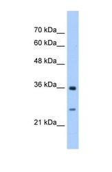 NBP1-55137 - Maleylacetoacetate isomerase / GSTZ1
