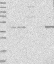 NBP1-83725 - GTDC1