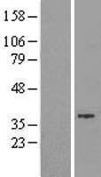 NBL1-11381 - GTDC1 Lysate