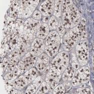 NBP1-86953 - GTF2A1 / TF2A1