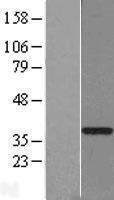 NBL1-11390 - GTF2H3 Lysate