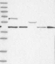 NBP1-83062 - GTF3C2 / TFIIIC110