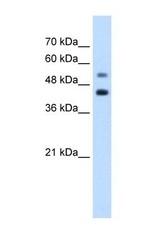 NBP1-57649 - GTPBP2