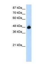 NBP1-57453 - GTPBP9 / OLA1