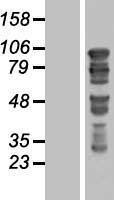 NBL1-11404 - GTSE1 Lysate
