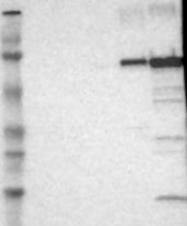 NBP1-81814 - Glycogenin-2 (GYG2)