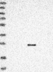 NBP1-86565 - Granzyme H (GZMH)