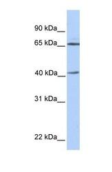 NBP1-58018 - Alpha-galactosidase A