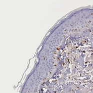 NBP1-89791 - Galectin-1