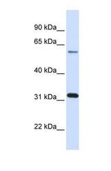 NBP1-55254 - Galectin-3