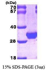 NBP1-30277 - Galectin-3