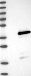 NBP1-87317 - Galectin-8