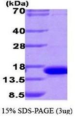 NBP1-40399 - Galectin-9