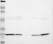 NBP1-82443 - PSMD10 / Gankyrin