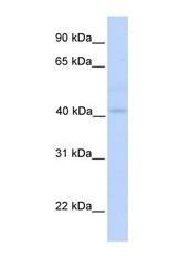 NBP1-54598 - Gasdermin-B