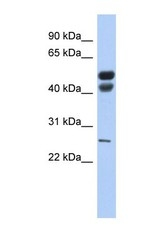 NBP1-57924 - Gastric lipase