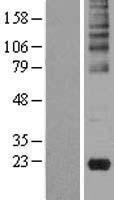 NBL1-11103 - Gastrokine 2 Lysate