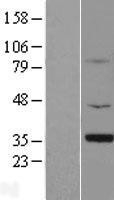 NBL1-16243 - Gemin 1 Lysate