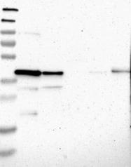 NBP1-91935 - STBD1 / Genethonin-1