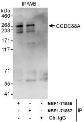 NBP1-71856 - Girdin