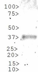 NBP1-78259 - GLI1