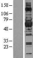 NBL1-10899 - Glucose 6 Phosphate Dehydrogenase Lysate