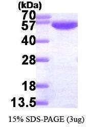 NBP1-30178 - G6PD