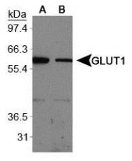 NB110-39113 - GLUT1 / SLC2A1