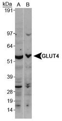 NBP1-49533 - GLUT4 / SLC2A4