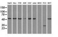 NBP1-47980 - GLUT5 / SLC2A5
