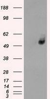 NBP1-47987 - GLUT6 / SLC2A6