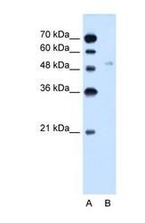 NBP1-59891 - GLUT6 / SLC2A6