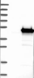 NBP1-89768 - Glutamine synthetase