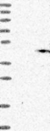 NBP1-90927 - Gamma-glutamyl hydrolase / GGH