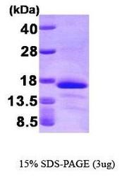 NBP1-30299 - Glutaredoxin-2 / GLRX2