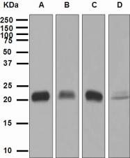 NBP1-95368 - Glutathione peroxidase 1 / GPX1