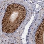 NBP1-88118 - Glutathione reductase