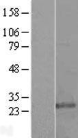 NBL1-11371 - Glutathione S Transferase kappa 1 Lysate