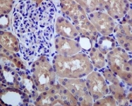 NBP1-95911 - Glutathione synthetase