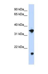 NBP1-55332 - GPD1
