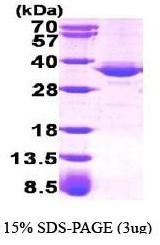 NBP1-40405 - GPD1