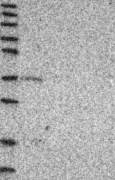NBP1-89723 - Glycogenin-1 (GYG1)