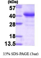 NBP1-30179 - Glycogenin-1 (GYG1)