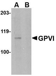NBP1-76359 - Platelet glycoprotein VI
