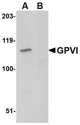 NBP1-76941 - Platelet glycoprotein VI