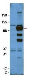 NBP1-42718 - Glypican-1 / GPC1