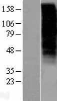 NBL1-11192 - GnRHR Lysate