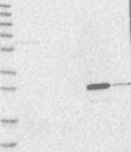 NBP1-89785 - Grancalcin